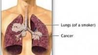 Akciğer Kanseri Beyin ve Böbreğe Sıçrarmı?