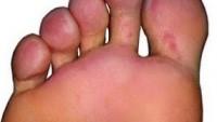 Ayakta Mantar Hastalığının Tedavisi