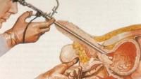 Prostat Kanserine Aşı Tedavisi