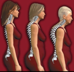 Osteoporoz Kemik Erimesi